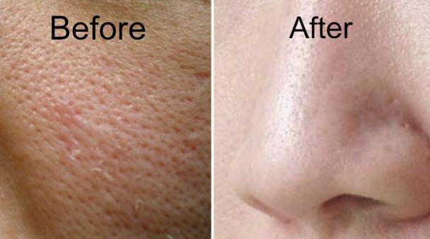 10 Cara Mengecilkan Pori Pori Di Wajah Secara Cepat Dan Alami