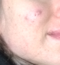 2 months after starting Accutane treatment