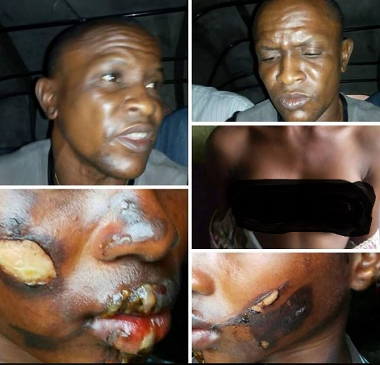 Wicked Uncle Burns Girl's Bre*sts, Face Over Alleged Theft (Pics)