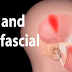 TMJ And Myofascial Pain Syndrome