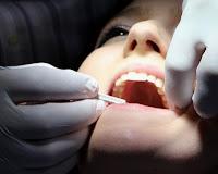 cara Menghilangkan Karang Gigi, karang gigi, cara menghilangkan kerak gigi, cara menghilangkan plak gigi,