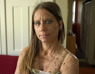 woman-tumours