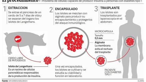 Transplantan células de cerdo a pacientes humanos para controlar la diabetes
