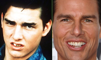 Tom Cruise looks much more confident with his straightened teeth