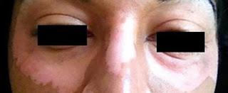 Dieta sin gluten elimina el vitiligo