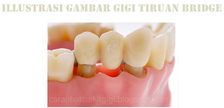 6 Macam Jenis Gigi Palsu (Permanen, Lepasan) dan Bahan yang Digunakan