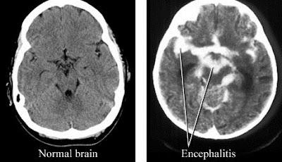 Meningitis dan Encephalitis Dengan Pemeriksaan Khusus