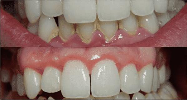 Протрите зубы и десна этими двумя маслами, и Вам больше не придется идти к стоматологу!