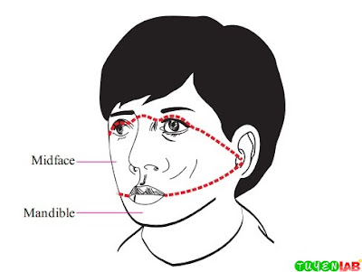 Facial Zones of Injury