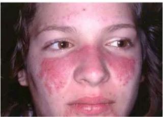 Sure Treatments Methods / Diagnosis For Lupus Disease