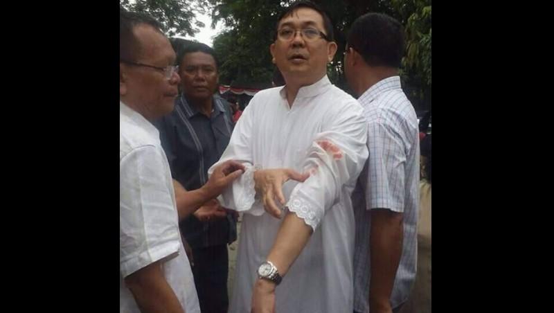 Kondisi pastor Albert Pandiangan yang diserang pelaku