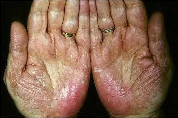 Bệnh á sừng là một bệnh viêm da cơ địa phổ biến