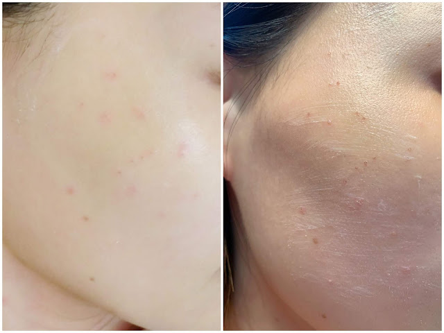 LMSKINCENTRE, 脫疣, CO2Laser, Thermage, 二氧化碳激光, 油脂粒, lovecathcath, catherine, 夏沫, lovecath, beauty, skincare