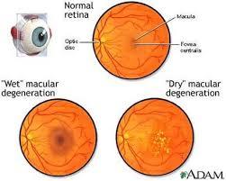 Kenali14 Macam Penyakit Mata Saat Ini