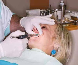 What a deep clean of your teeth can do to fight gum disease