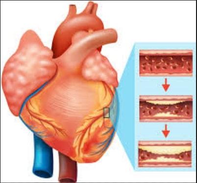 Bahaya dan Komplikasi Penyakit Katup Jantung
