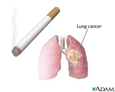 Cigarette Smoking is Dangerous to your health | Topix