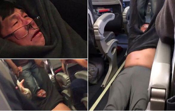 Khủng hoảng kép United Airlines - lỡ rồi, làm sao cứu?