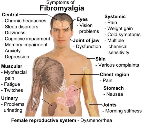 Fibromyalkia