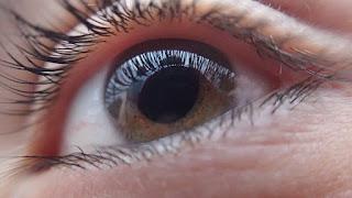 Jenis, Penyebab, Gejala, Diaknosa dan Penanganan Glaukoma