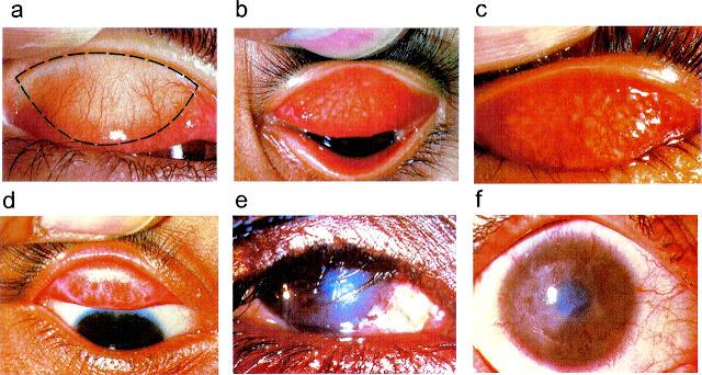 Trachoma Blinding disease grading