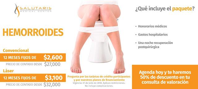 Precio Cirugia Hemorroides almorranas Guadalajara Mexico