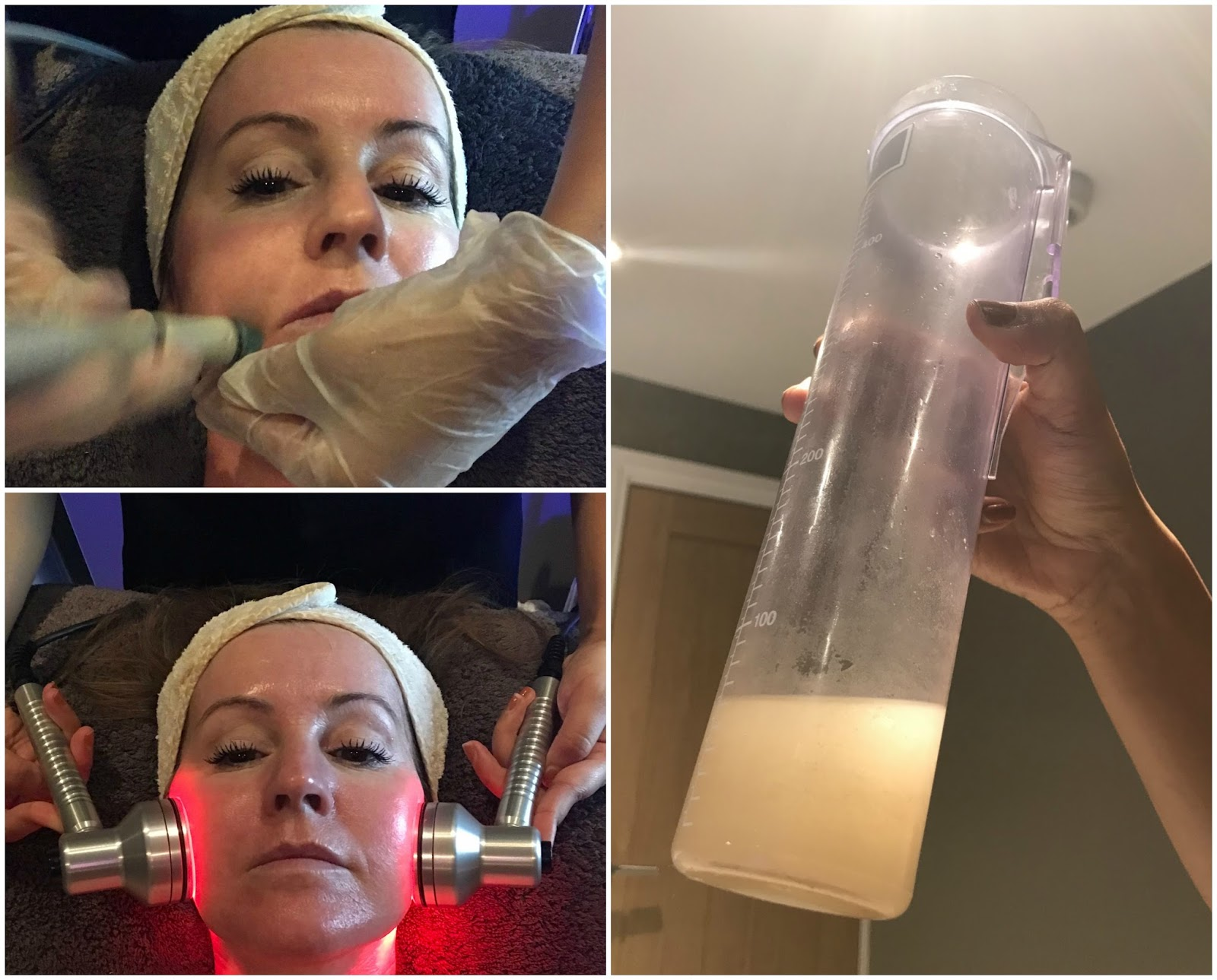 Hydrafacial extraction \ LED lights \ Hampton Clinic \ experiencing the Hydrafacial at Hampton clinic \ Priceless Life of Mine \ over 40 lifestyle blog
