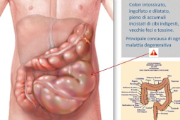 Do You Poop Once A Day Or Easily Pass Stool Without Pain?  If Not You Could Need A Colon Cleanse