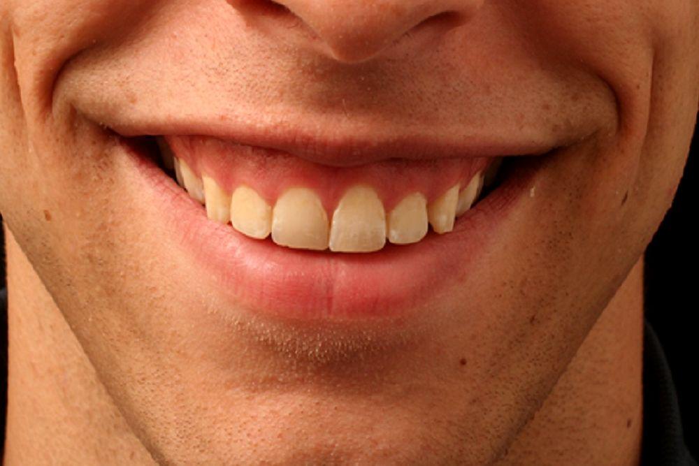 Sorriso gengival