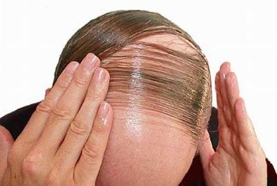 Receta para la calvicie: el pelo comenzara a crecer después de dos días!