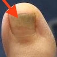 verhornte Fußnägel. Jenn Cosmetic