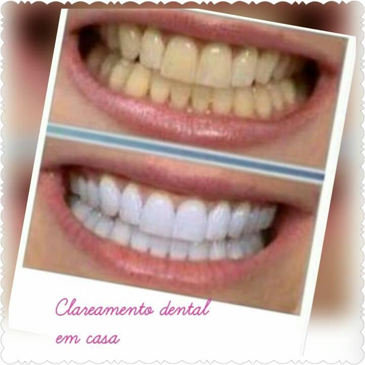 Vaidade E Originalidade Clareamento Caseiro Para Os Dentes