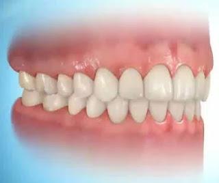 Ortodonti ve Diş Teli