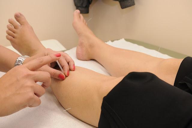 la acupuntura para la artritis