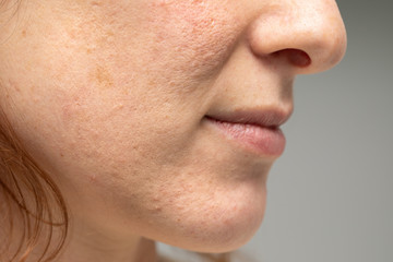 4 Natural Ways to Clear Acne Scars