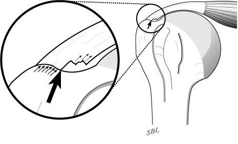 Shoulder Arthritis Rotator Cuff Tears Causes Of Shoulder Pain
