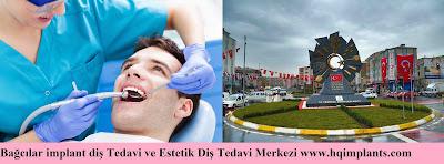 Bağcılar implant