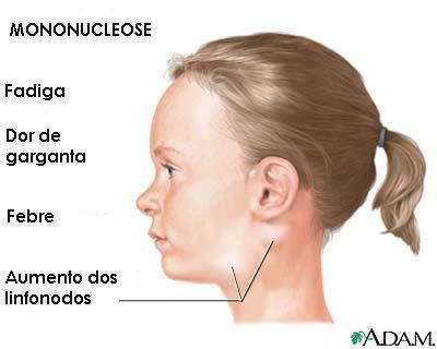 diagram of infected salivary glands diagram glands under chin