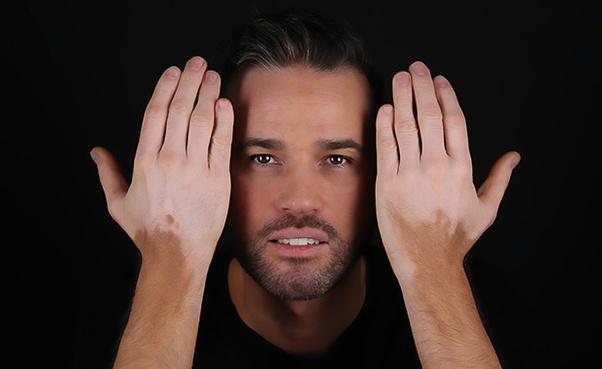 Penyakit Sopak Atau Vitiligo: Cara Terbaik Dan Selamat Untuk Merawat Sopak atau Vitiligo