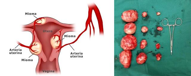 Pengobatan Yang Ampuh Penyakit Miom Tanpa Operasi