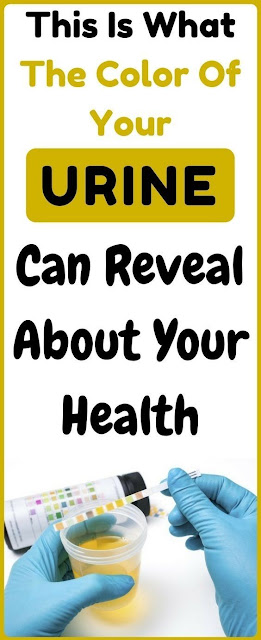 What the color of your urine and frequent urination can tell you about your health?