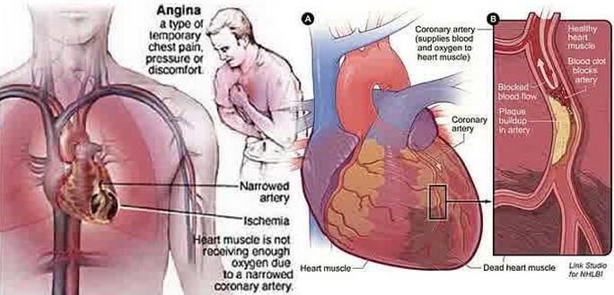 faktor penyebab sakit dada yang berasal dari jantung