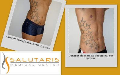 Antes y Despues de marcaje abdominal y oblicuos con lipolaser  en paciente masculino en Guadalajara Mexico