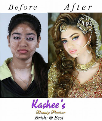 Kashees beauty parlour perfect skin transformation of girl