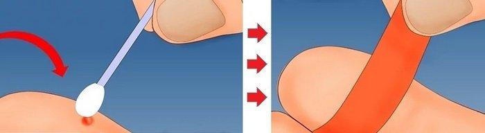 Kutil merupakan benjolan yang terjadi pada jaringan kulit 34 Cara Menghilangkan Kutil Secara Alami, Modern & Terapi
