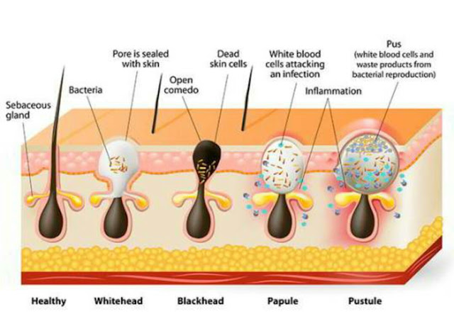 acne%2Ball