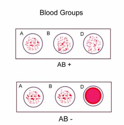 Blood-group-results