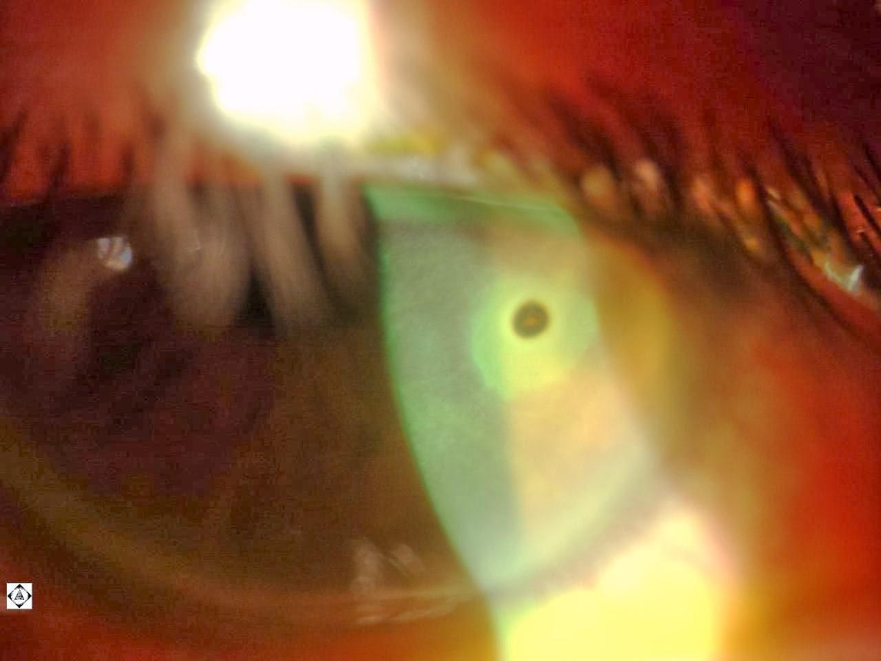 Sonoran Desert Eye Center Corneal Foreign Body