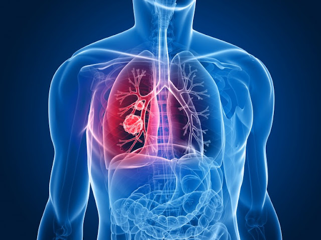 Malignant Mesothelioma Cancer Guide
