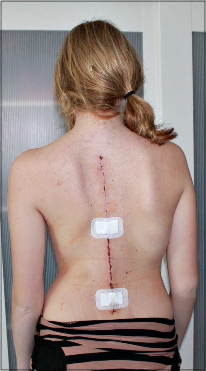 Scoliosis Will Make Me Stronger 2013
